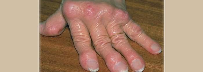Arthritis on older people
