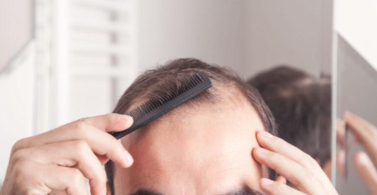 5 Hair Loss Myths Debunked