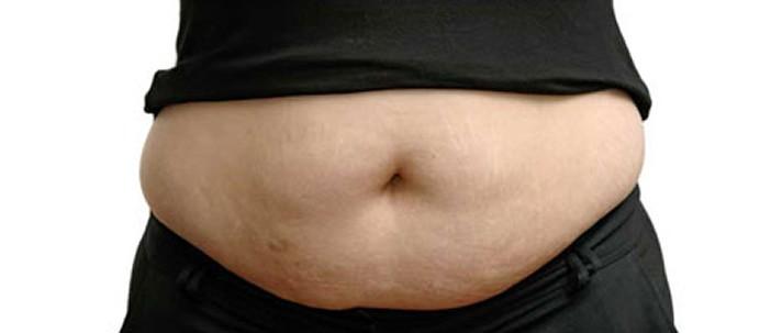 Do People Really Need Liposuction?